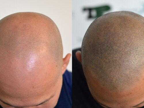 Rimedi per caduta capelli, un affare per dermatologi