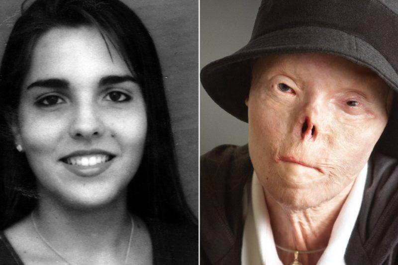 Ciao Jacqui, la sua storia drammatica dall'incidente che la sfigurò al tumore