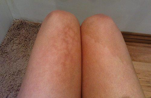 Pc portatile sulle gambe fa male? Cosa dicono esperti e migliori rimedi