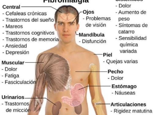Fibromialgia, sintomi e cura di una malattia invalidante ma non per lo Stato